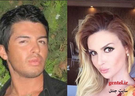 چهره ی سلین جیرجی قبل و بعد از عمل